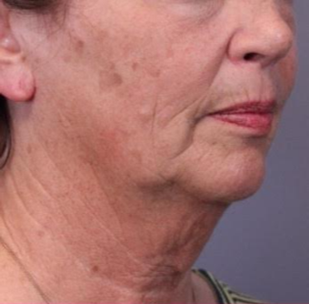 55-64 year old woman treated with Facelift before 3782457
