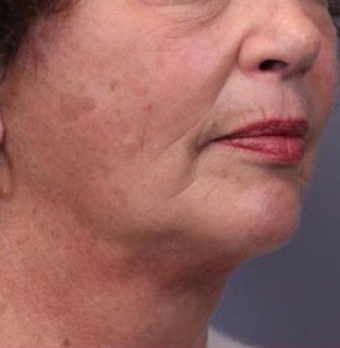55-64 year old woman treated with Facelift after 3782457