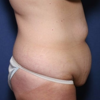 45 year old woman treated with Panniculectomy with a vertical wedge resection before 2259106