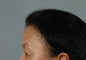 45-54 year old woman treated with Asian Eyelid Surgery before 3615939