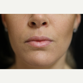 25-34 year old woman treated with Lip Augmentation before 3554787