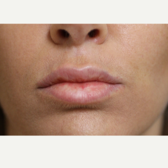 25-34 year old woman treated with Lip Augmentation after 3554787