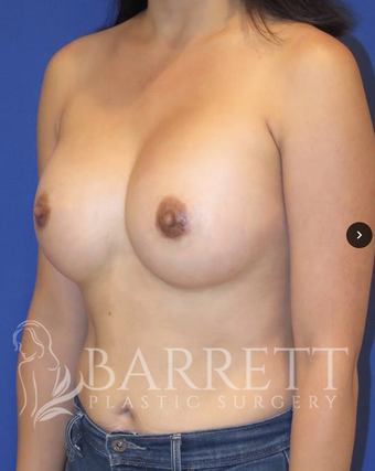 35-44 year old woman treated with Breast Implants 2272937