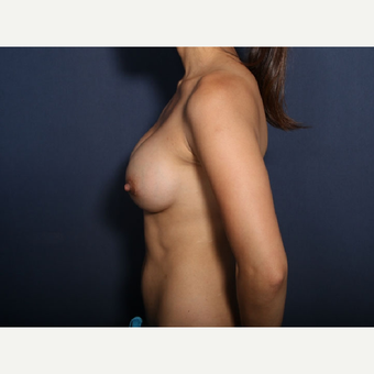 25-34 year old woman treated with Breast Augmentation (view 2 of 2) after 3169068