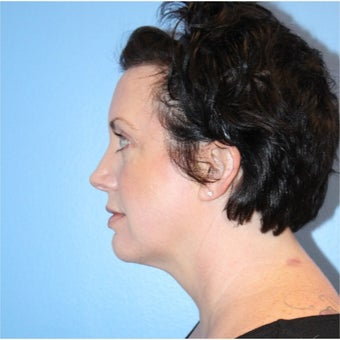 35-44 year old woman treated with Kybella after 2530736