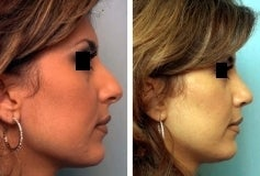 Rhinoplasty after 143652