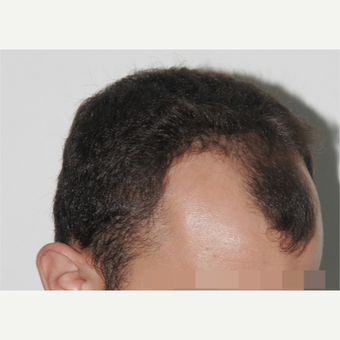 25-34 year old man treated with FUE Hair Transplant before 3238513