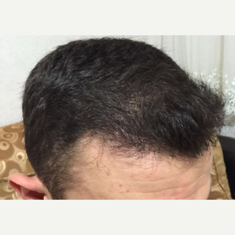 25-34 year old man treated with FUE Hair Transplant after 3238513