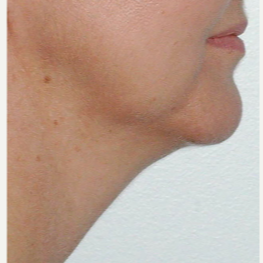 45-54 year old woman treated with Kybella after 3536431