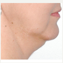 45-54 year old woman treated with Kybella before 3536431