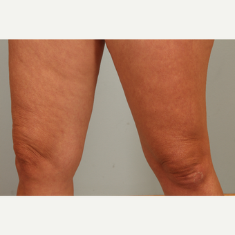46 year old with aging knees treated with microneedling and hyaluronic acid single treatment before 3452994