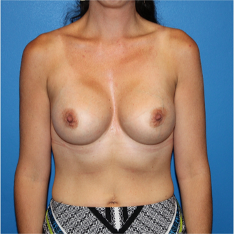 25-34 year old woman treated with Breast Augmentation after 3281436
