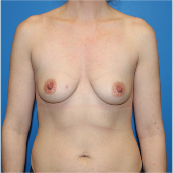 25-34 year old woman treated with Breast Augmentation before 3281436