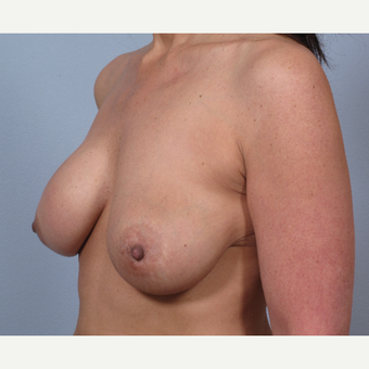 48 year old with breast implants done elsewhere. She presented with severe asymmetry and drooping. before 3452470