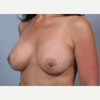 48 year old with breast implants done elsewhere. She presented with severe asymmetry and drooping. after 3452470
