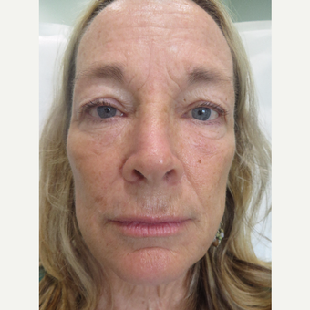 45-54 year old woman treated with Sculptra before 3748701