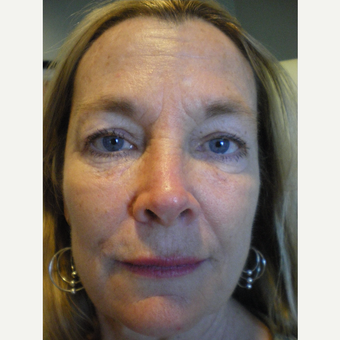 45-54 year old woman treated with Sculptra after 3748701