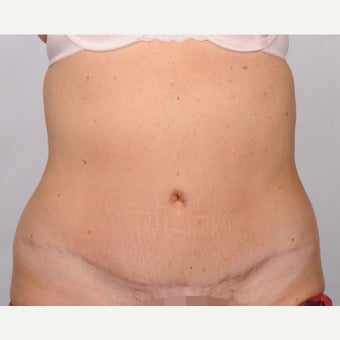 No Drain Tummy Tuck after 2486321