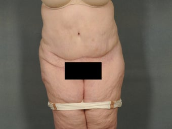 "Age: 52, Height: 5""10"", Weight: 236lbs. after 1306678"