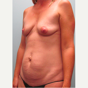 38 year old woman treated with Mommy Makeover before 3679648