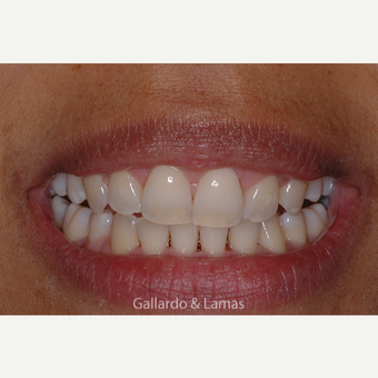 35-44 year old woman treated with Gum Lift after 3127719