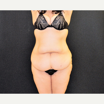 "This 33 year old is 5'2"" and 150 pounds.  She underwent Dr. Campanile's patented CLASS Tummy Tuck before 3774903"