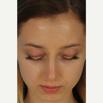 25-34 year old woman treated with Rhinoplasty after 3628976