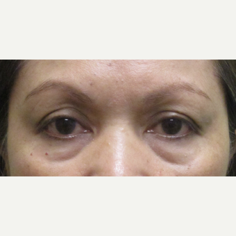55-64 year old woman treated with upper and lower eyelid Surgery before 3220043