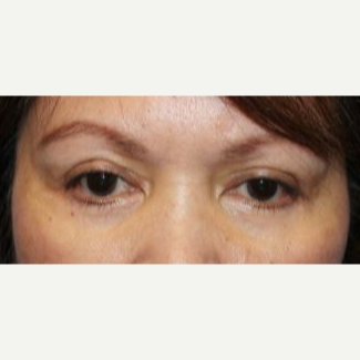 55-64 year old woman treated with upper and lower eyelid Surgery after 3220043