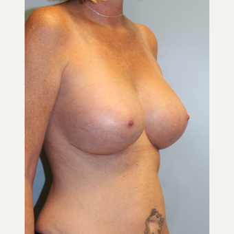 45-54 year old woman treated with Breast Implants after 3709873