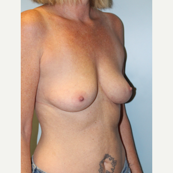 45-54 year old woman treated with Breast Implants before 3709873