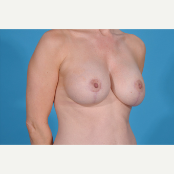 35-44 year old woman treated with Breast Lift with Implants after 3777087