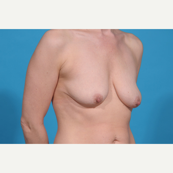 35-44 year old woman treated with Breast Lift with Implants before 3777087