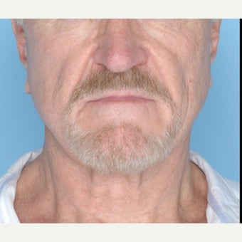 65-74 year old man treated with Ultherapy after 1794399