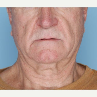 65-74 year old man treated with Ultherapy before 1794399