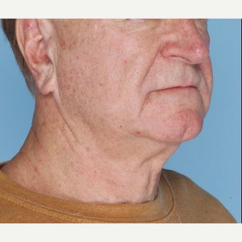65-74 year old man treated with Ultherapy 1794399