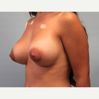 18-24 year old woman treated with Breast Augmentation after 3543083