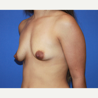 18-24 year old woman treated with Breast Augmentation before 3543083