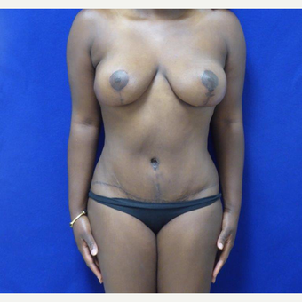 32 y.o. – female – Wise pattern mastopexy with abdominoplasty (mommy makeover) after 3401329
