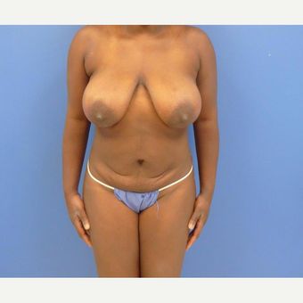 32 y.o. – female – Wise pattern mastopexy with abdominoplasty (mommy makeover) before 3401329