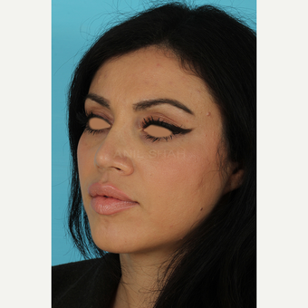 25-34 year old woman treated with Rhinoplasty after 3691313