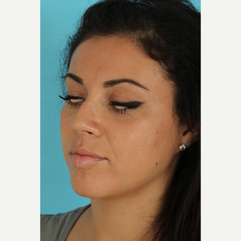 25-34 year old woman treated with Rhinoplasty before 3691313