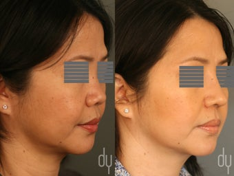 Asian rhinoplasty with rib cartilage harvest, diced cartilage fascia (DCF) dorsal augmentation.