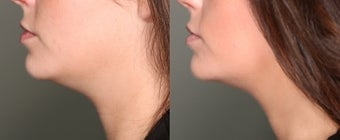 26 year old female Ulthera Neck Lift before 1001213