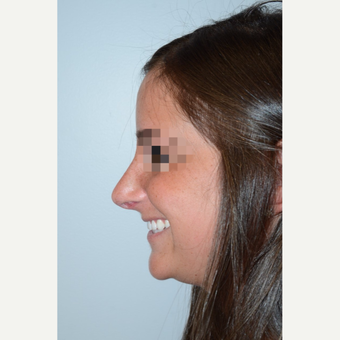 25-34 year old woman treated with Rhinoplasty after 3400877