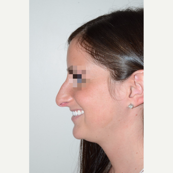25-34 year old woman treated with Rhinoplasty before 3400877