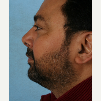 45-54 year old man treated with Rhinoplasty after 3055096