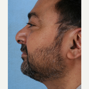 45-54 year old man treated with Rhinoplasty before 3055096