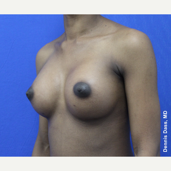 25-34 year old woman treated with Breast Augmentation after 3353315