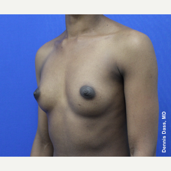 25-34 year old woman treated with Breast Augmentation before 3353315